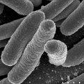 Escherichia coli grossissement × 15 000